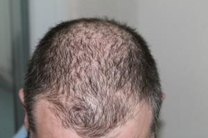 Jak zastavit padání vlasů